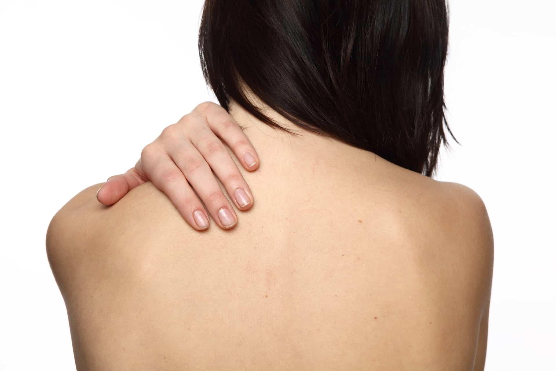 Угри на плечах и спине причины 22 фотография