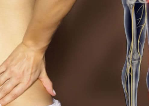 Help with sciatica and leg pain from Dr. Stepanie Louie Chiropractor Victoria BC