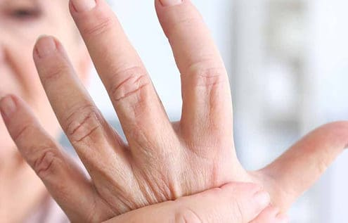 diagnosing and treating arthritis